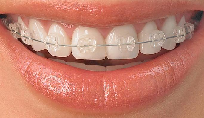 Avusturya'da 18 yaş altı çocuklara diş telleri ücretsiz
