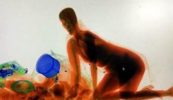 Milyonluk tablo değil! Çinli kadın X-Ray'de!