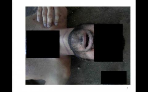 ''Suriye'de Kan Donduran Görüntüler''