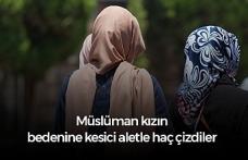 """Müslüman genç kızın vücuduna kesici aletle """"haç"""" çizdiler"""