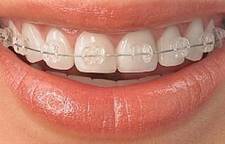 Avusturya'da 18 yaş altı çocuklara diş telleri...