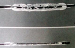Koroner kalp hastalığına mikro stent geliştirildi
