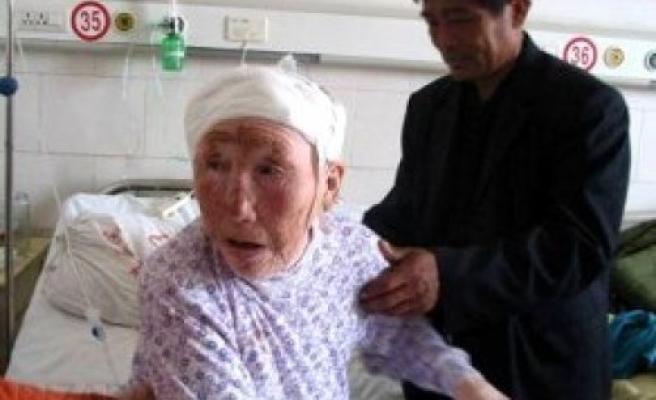 Yaşlı kadın kafasında 64 yıldır kurşun taşıyormuş!